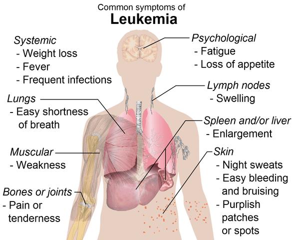 Leukemia - Medical Marijuana Research