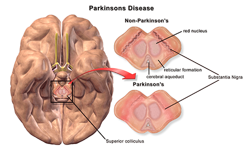 Parkinson's Disease - Medical Marijuana Research