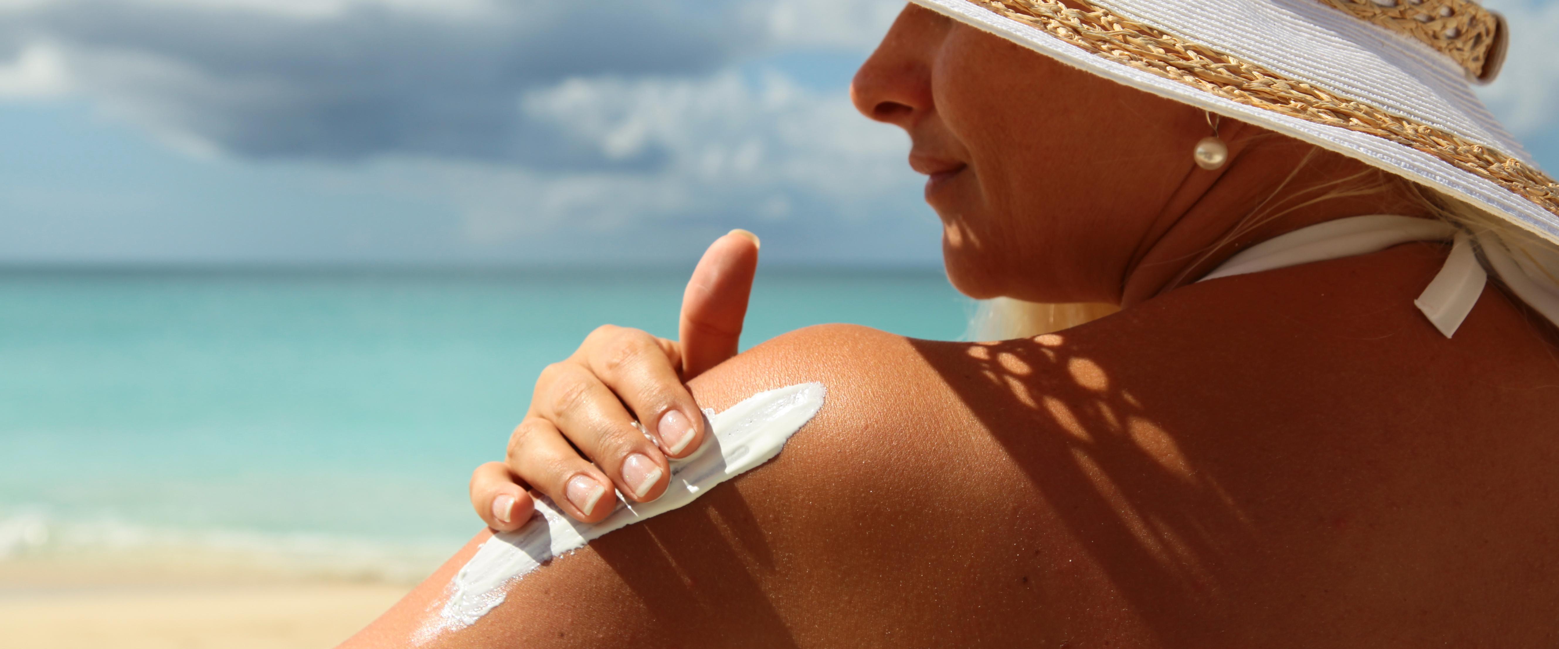 CBD for sunburn