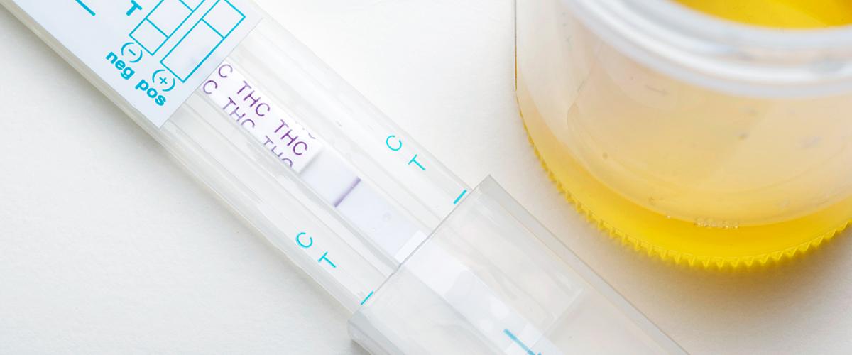"CBD drug test ""width ="" 1200 ""height ="" 500 ""src ="" https://www.medicalmarijuanainc.com/wp-content/uploads/2019/12/iStock-Images- for-MJNA_12 -11-19__0004_iStock-471493043.jpg ""data-class ="" alignnone size-full wp-image-633201 lazyload ""/> </p> <p> <img class="